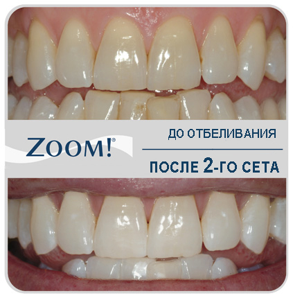 Сколько стоит отбеливание зубов в кирове