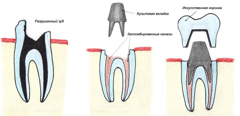 отбеливание зубов zoom 5